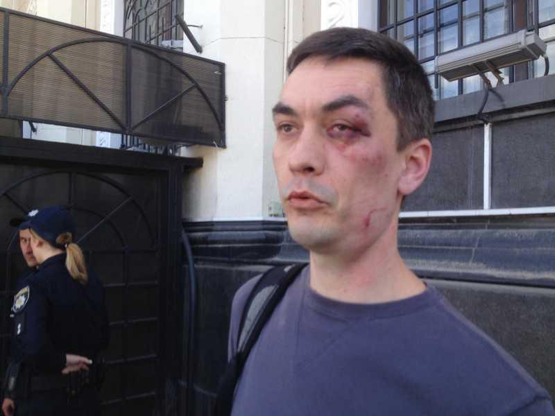 В Одессе националисты избили парня, который нес цветы на Куликово поле
